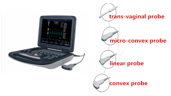 Plein diagnostic portatif de machine d'ultrason de Digital Doppler pour la grossesse